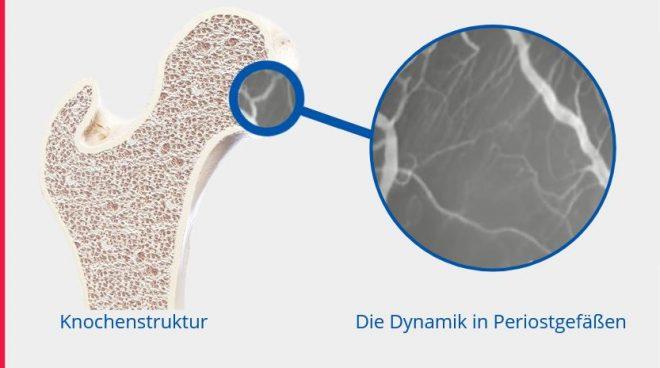 Knochenstruktur Difussionsprozesse